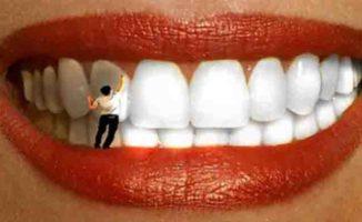 Stomatologo žmona išmokė mane, kaip per 4 minutes pašalinti dantų akmenis ir išbalinti dantis (y)