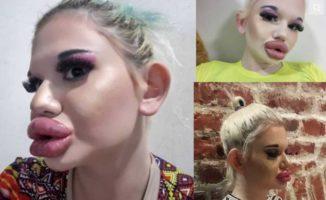 21-oji injekcija į lūpas! Mergina visais būdais bando išlaikyti lūpų apimtį!
